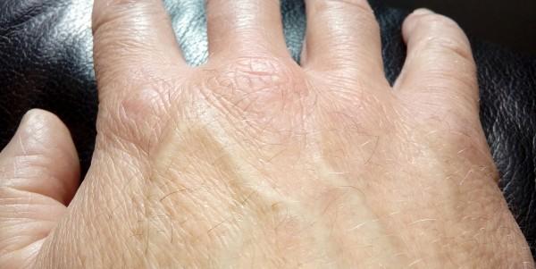 suha koža na rokah